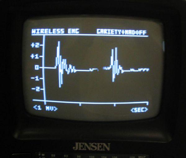 Wireless Electromyograph using ATmega32