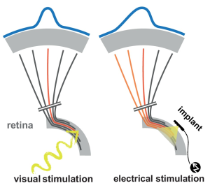 Improvement in the resolution of Retinal Prostheses